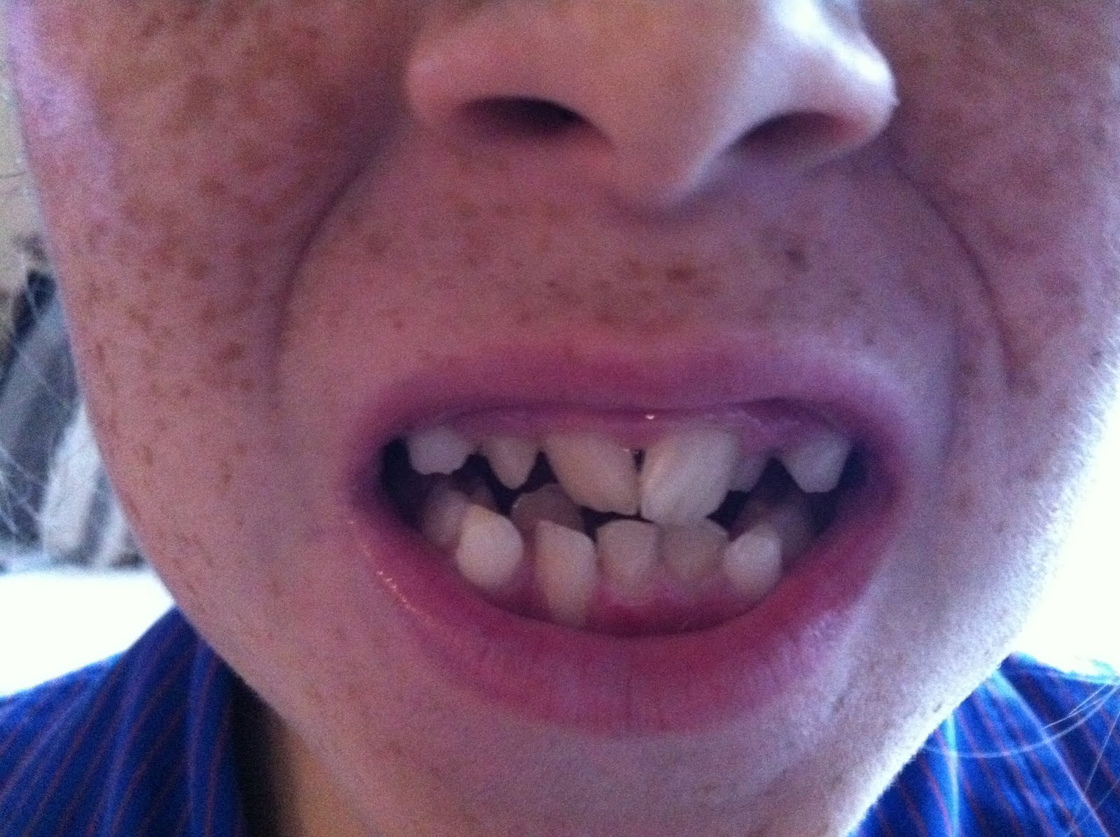 expander for teeth how to turn