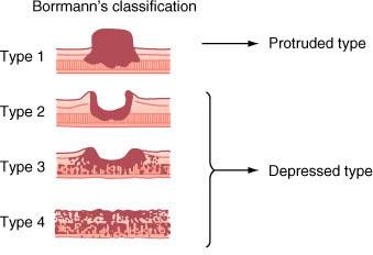 Criterios de borman