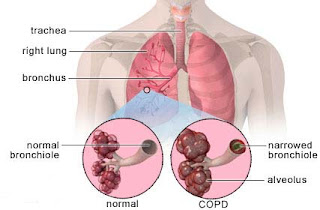 Nursing Intervention for Chronic obstructive pulmonary disease (COPD)