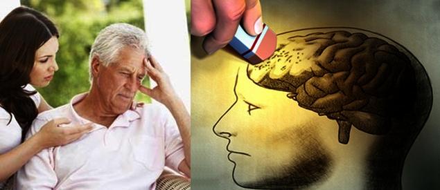 Obat Tradisional Alzheimer