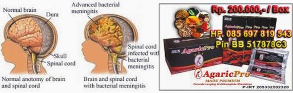 Cara Menyembuhkan Meningitis pada Anak Bayi