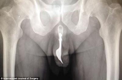 Man inserts Fork into his Penis During Masturbation