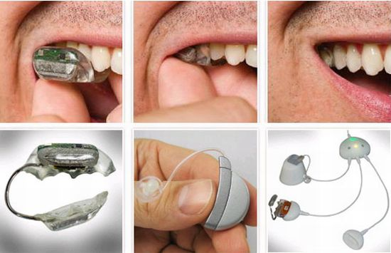 Ακουστικό... στα δόντια!