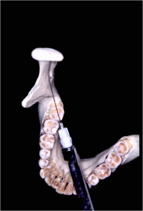 mandibular nerve block background indications contraindications