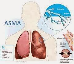 Apa Saja Penyebab Penyakit Asma?