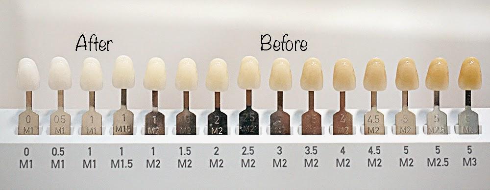 Tooth shades chart ibov jonathandedecker com