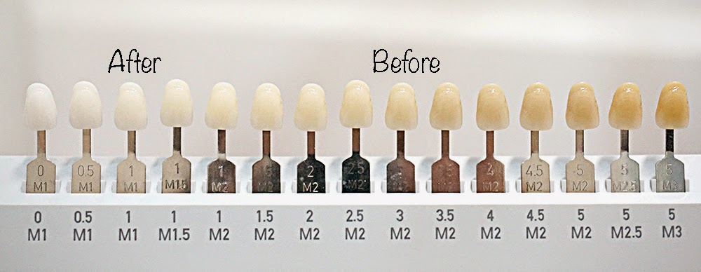 image about Tooth Shade Chart Printable titled High definition wallpapers printable teeth coloration chart 26cell2.gq