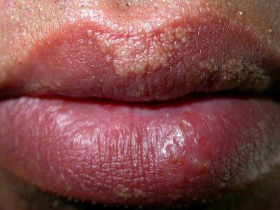 Little White Spots On Lips