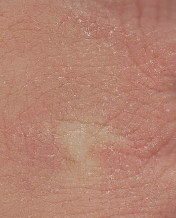 http://commons.wikimedia.org/wiki/File:Xeroderma_knuckles.jpg