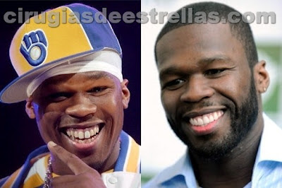 50 cent antes y despues