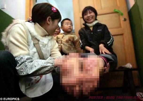 PELIK Wanita China Ini Miliki Tapak Kaki Terbalik 2 GAMBAR