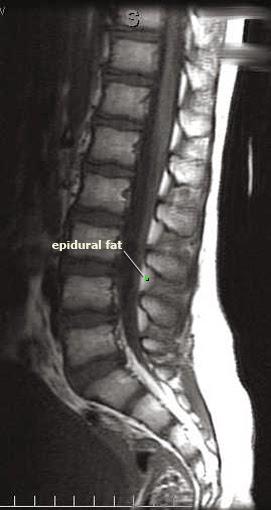 Posterior Epidural Fat Between Lumbar Vertebrae In Mri Image