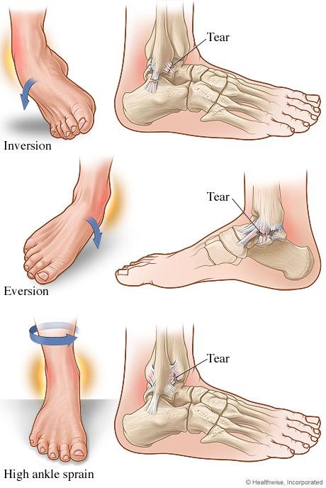 Cedera Engkel,cedera engkel,cedera engkel tangan,cedera engkel penyembuhan,cedera engkel bengkak,cedera engkel kambuhan,cedera engkel adalah,cedera engkel penanganan,cedera engkel berapa lama,akibat cedera engkel,terapi cedera engkel kaki,Keseleo,keseleo,keseleo pergelangan kaki,keseleo pada bayi,keseleo engkel,keseleo pergelangan tangan,keseleo pada anak,keseleo lutut,keseleo pada lutut,keseleo in english,keseleo adalah