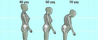 Kemik erimesini önlemek