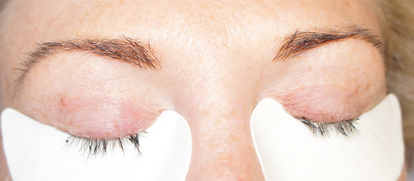 Eyelash Extension Glue Problems - Tape On And Off Extensions