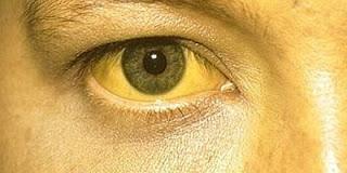 Cara Mengatasi Penyakit Kuning, cara alami mengobati penyakit kuning dengan alami