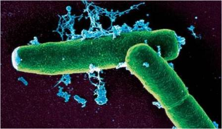 Bacterial Diseases in Humans, Animals and Plants ~ Biology Exams 4 U