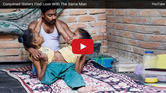 OMG!!! Conjoined Sisters Fall in Love with the Same Man <Photos/Video>