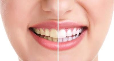 أسهل طريقة لعلاج اصفرار الأسنان