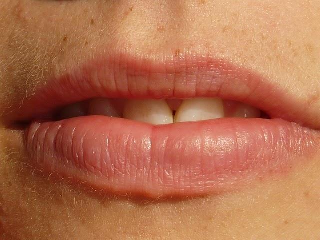 niesymetryczne usta