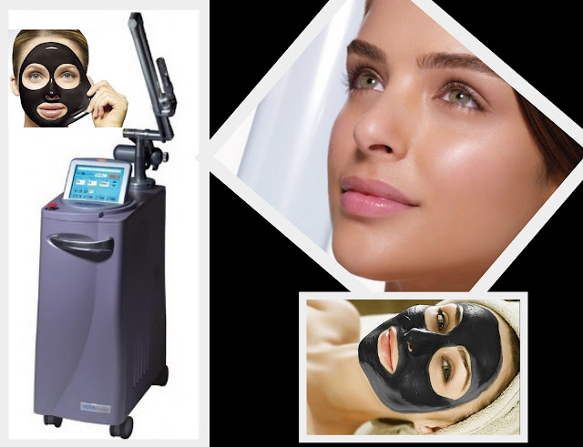 carbon facial Revlight Dr. Shazia Ali