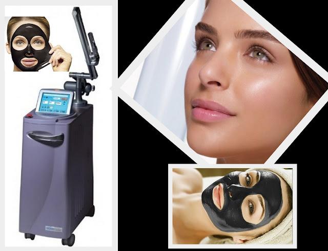carbon facial Revlight Dr. Shazia Ali