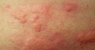 How To Treat Skin Rashes Health Care Skin Care Beauty