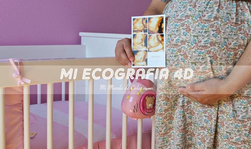 4D Ultrasound 4D Ecox Pamplona