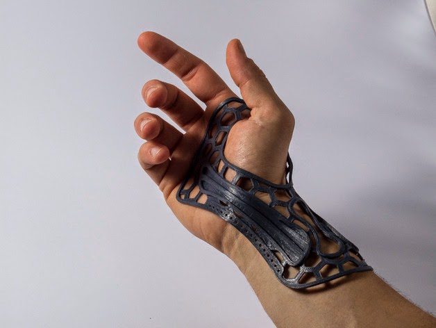 Diy 3d printing 3d printable diy hand wrist brace here is a hand wrist brace you can make yourself on your 3d printer it was probably designed to help deal with strain injuries but do consult a medical solutioingenieria Images
