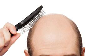Cara mencegah rambut rontok, cara mencegah kebotakan, tips mencegah kerontokan rambut