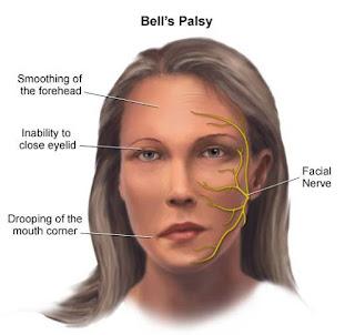 Jangan Anggap Sehat Dan Baik2 Saja - PENYAKIT BELL'S PALSY DISEAS Mengincar Anda