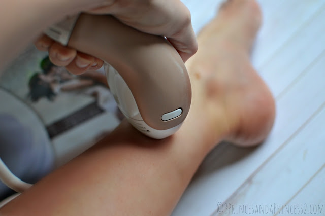 Home hair removal