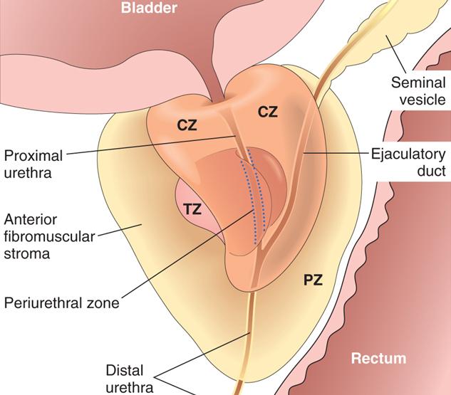 Patología B 2013: VIAS URINARIAS INFERIORES Y APARATO GENITAL MASCULINO