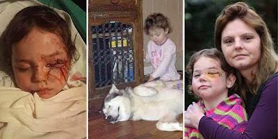 Nasib Malang Belita Jadi Korban Di Kunyah Anjing
