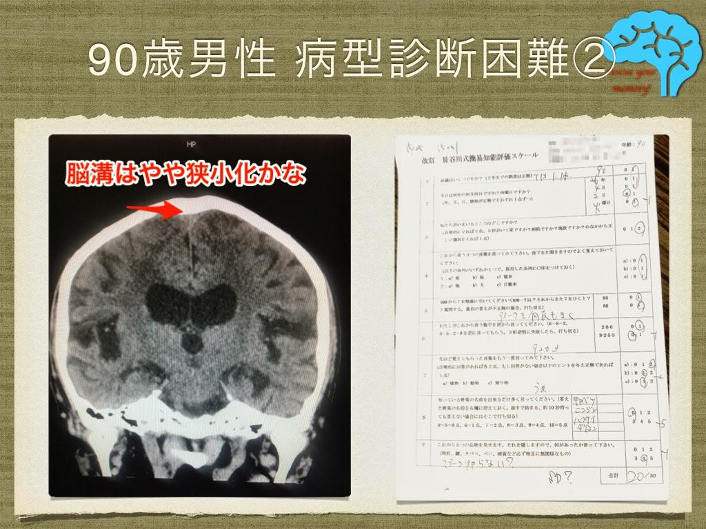 鎮痛剤を使わない頭痛の治療②
