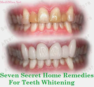 Seven Secret Homemade Remedies to Whiten Teeth Effectively and Economically