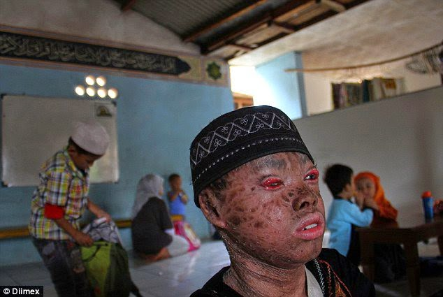 'Snake boy' Sheds His Skin Every 41 Days Since Birth