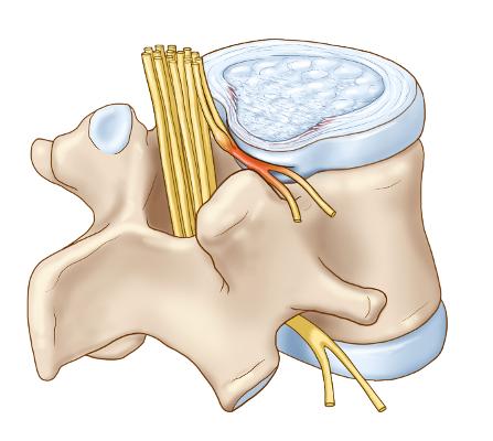 Principala complicatie a herniei de disc