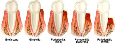 piorrea enfermedad periodontal periodontitis infeccion sangrado encia