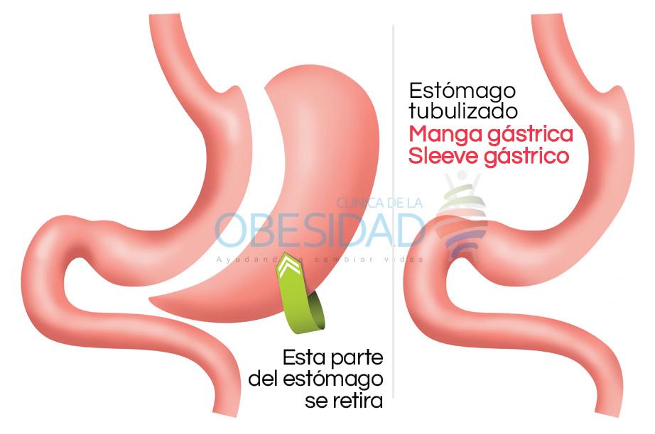 Quemador de grasa casero para el abdomen