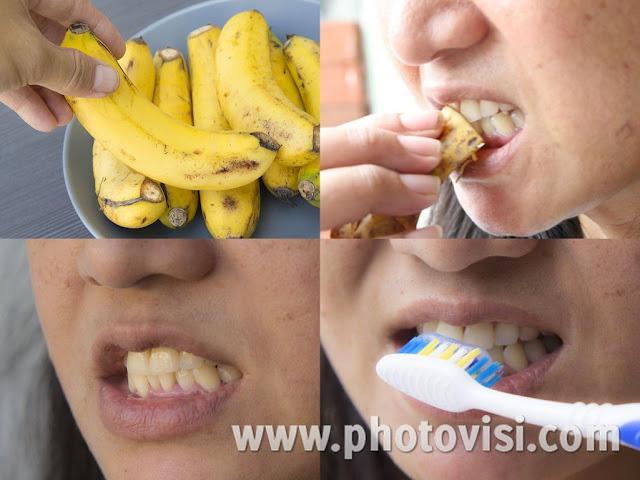 أسرع طريقة لتبييض الأسنان باستخدام قشر الموز