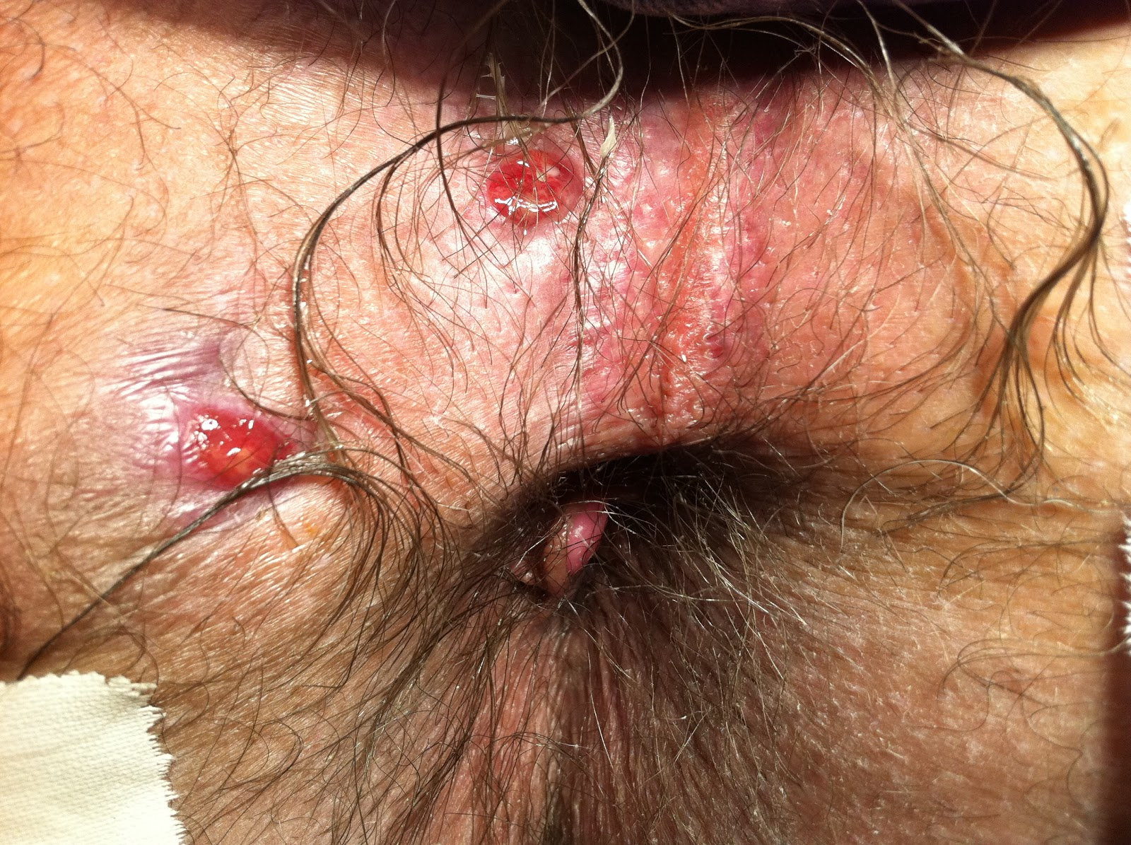 Anal fissure or herpes