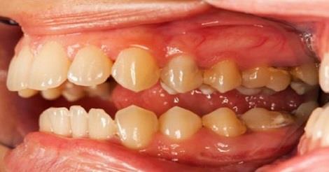 هل تعرف ما هي الفاكهة التي تقضي نهائيا على تسوس الأسنان والتهاب اللثة !!