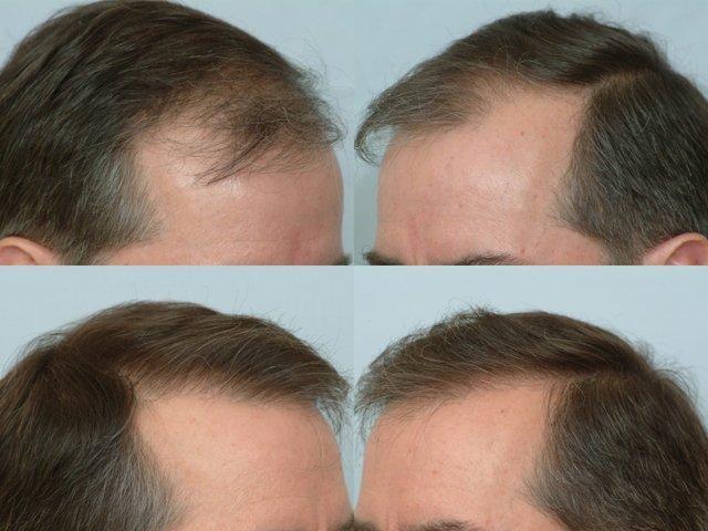Hair Transplantation Delhi Best Hair Transplantation Services
