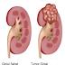 Obat Tradisional Tuntaskan Tumor Ginjal