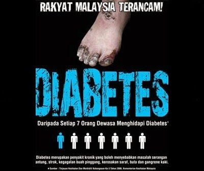 kaki potong diabetes