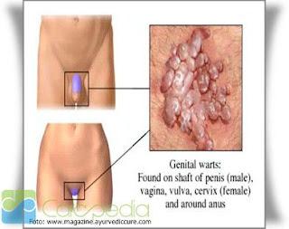 Gambar tanda-tanda penyebab penyakit gonore cara mengobati gonore secara alami