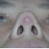 Phẫu thuật sửa mũi bị bóng đỏ bằng Megaderm