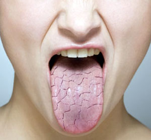 Image result for Oral dryness and reduced salivary secretion