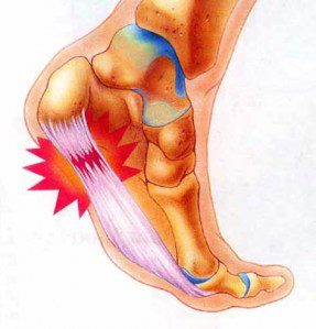 Aktivitas fisik yang berlebihan. Plantar fasciitis umum dijumpai pada pelari-pelari jarak jauh. Jogging, berjalan atau naik tangga juga dapat menyebabkan stress yang terlalu banyak pada tulang tumit kita dan jaringan lunak yang terikat di sana. Arthritis. Beberapa tipe arthritis dapat menyebabkan peradangan pada tendon dari telapak kaki, yang dapat menyebabkan plantar fasciitis. Diabetes. Meskipun tidak diketahui mekanismenya, akan tetapi plantar fasciitis terjadi lebih sering pada orang dengan diabetes. Mekanik kaki yang abnormal. Lengkung telapak kaki yang datar atau terlalu melengkung atau pola berjalan yang abnormal dapat mengakibatkan distribusi berat badan kita tidak seimbang diterima oleh kedua kaki, dan menyebabkan stress tambahan paa plantar fascia. Sepatu yang tidak cocok. Sepatu yang solnya tipis, longgal atau tidak ada dukungan untuk lengkung kaki atau tidak ada kemampuan untuk menyerap hentakan tidak melindungi kaki kita. Jika anda secara teratur memakai sepatu dengan tumit tinggi maka tendon Achilles – yakni tendon yang melekat pada tumit kita – dapat berkontraksi/tegang dan memendek, menyebabkan strain pada jaringan di sekitar tumit.